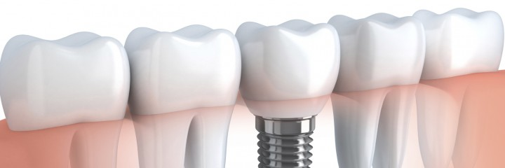 Aesthetische Zahnmedizin Zuerich Zahnimplantate
