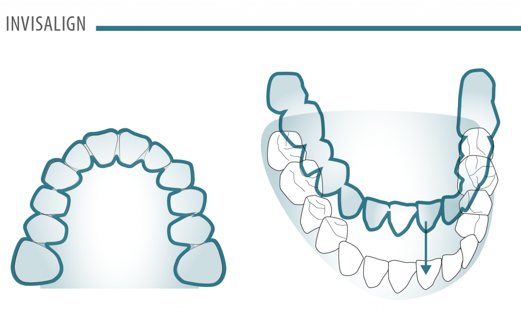 Invisalign Illustration