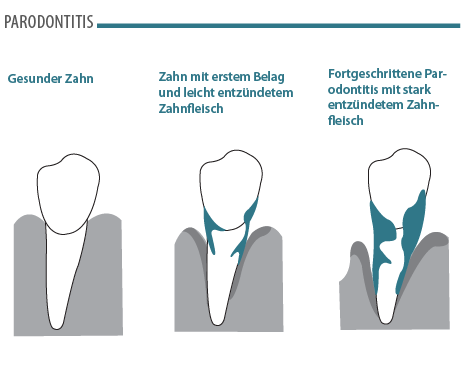 Parodontitis Verlauf Illustration