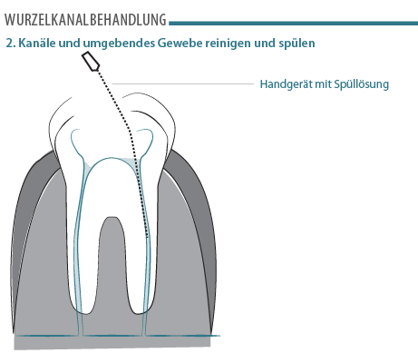 Wurzelkanalbehandlung Illustration
