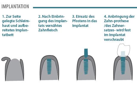 Zahnimplantate Illustration