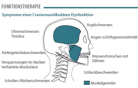 CMD Symptome - Funktionstherapie
